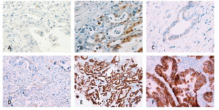 Stanovení skóre exprese HER2 v adenokarcinomu žaludku.