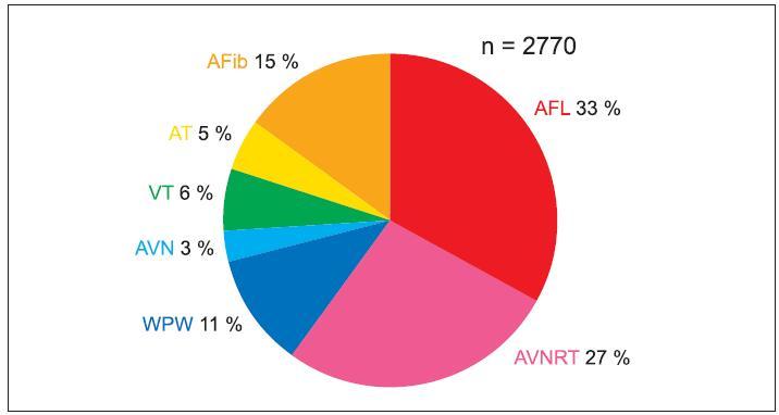 Spektrum katetrizačních ablačních výkonů v roce 2005. AFib – fibrilace síní, AFL – flutter síní, AVNRT – atrioventrikulární nodální reentry tachykardie, WPW – akcesorní AV-spojka, VT – komorová tachykardie, AT – síňová tachykardie, AVN – neselektivní ablace AV-uzlu.