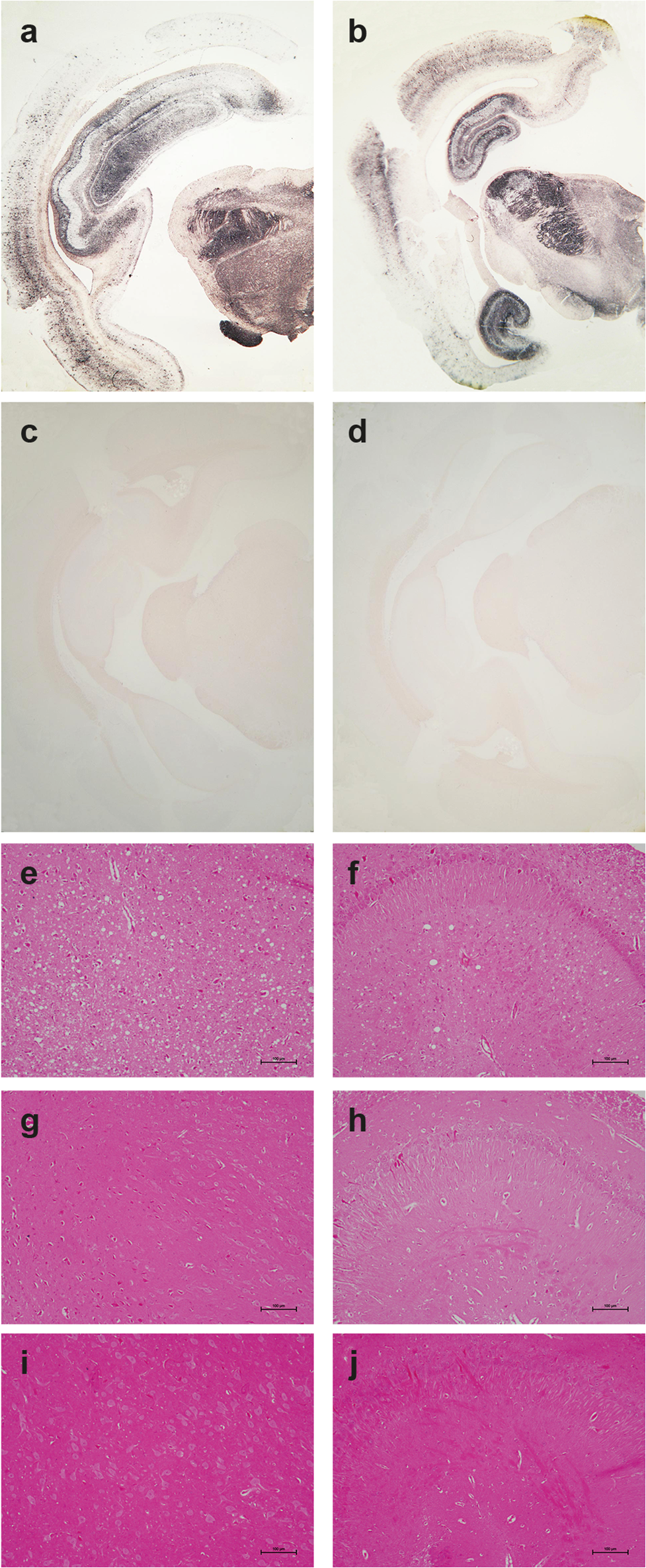 Pathological PrP deposition and vacuolation in the brains of wild-type and tgOv rabbits inoculated with LA21K <i>fast</i> scrapie prions.