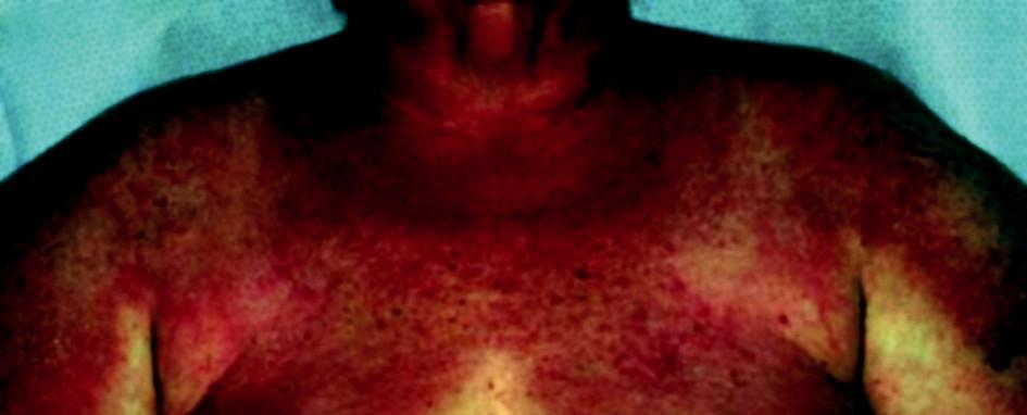 Projevy dermatomyozitidy v oblasti krku, hrudníku a ramen u 67leté paceintky s karcinomem ovaria