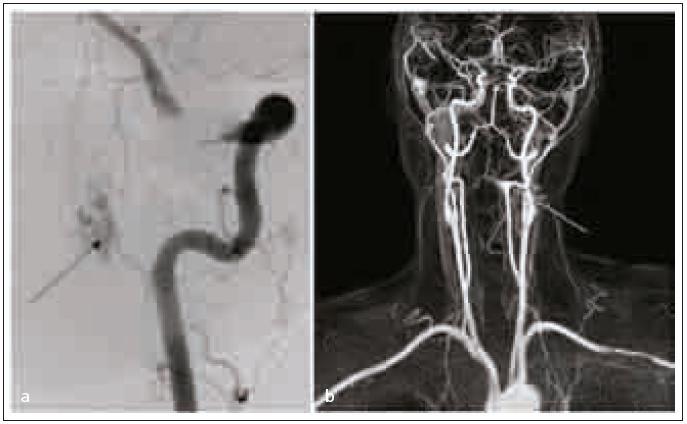 Kontrastní MR angiografie, šipka ukazuje na místo nidu AV malformace (a), DSA potvrzuje nález na MR angiografii (b).