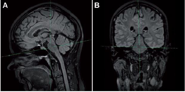 Post-processing s použitím 3D FLAIR sekvencie s následnou rekonštrukciou axiálnej roviny naklonenej podľa HYFA línie (A) a po korekcii rotácie hlavy pacienta (B).
