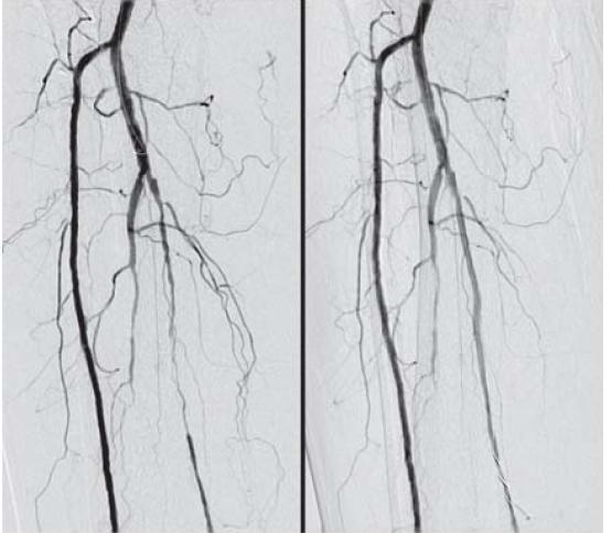 Obr. 5.2. DSA artérií PDK