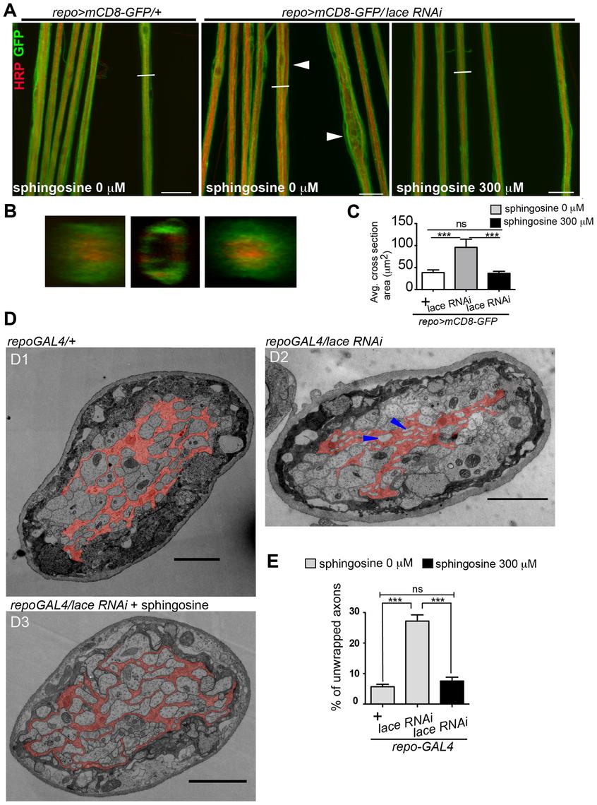 Sphingosine rescues the glial bulging phenotype.