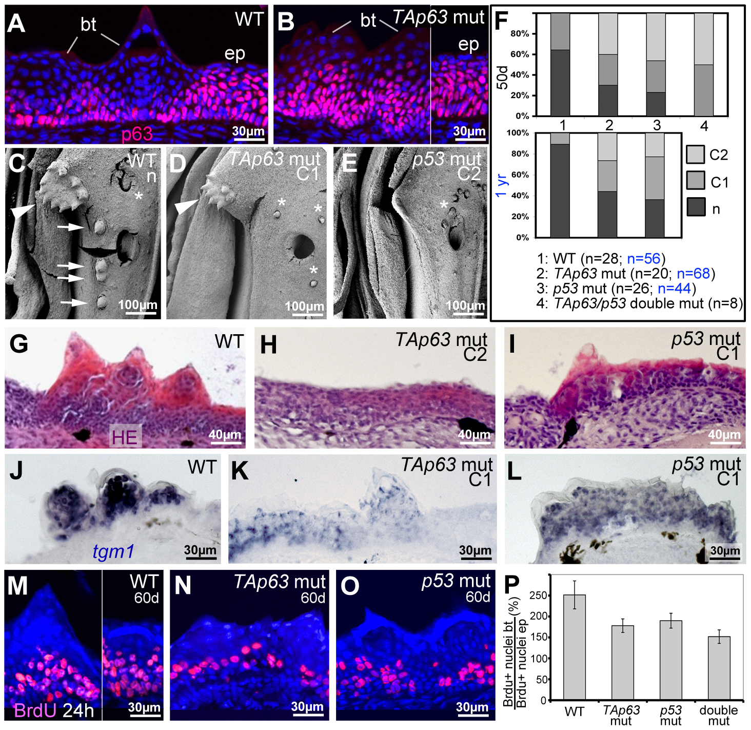 TAp63 and p53 mutants display reduced proliferation in basal layers and reduced differentiation in upper layers of tubercle remnants.