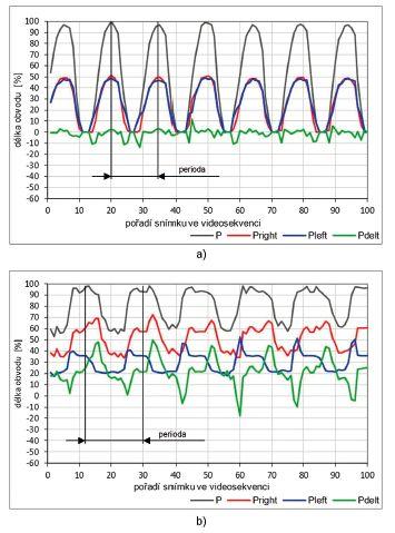 Vývoj parametrů symetrie délky obvodu hlasivkové štěrbiny: