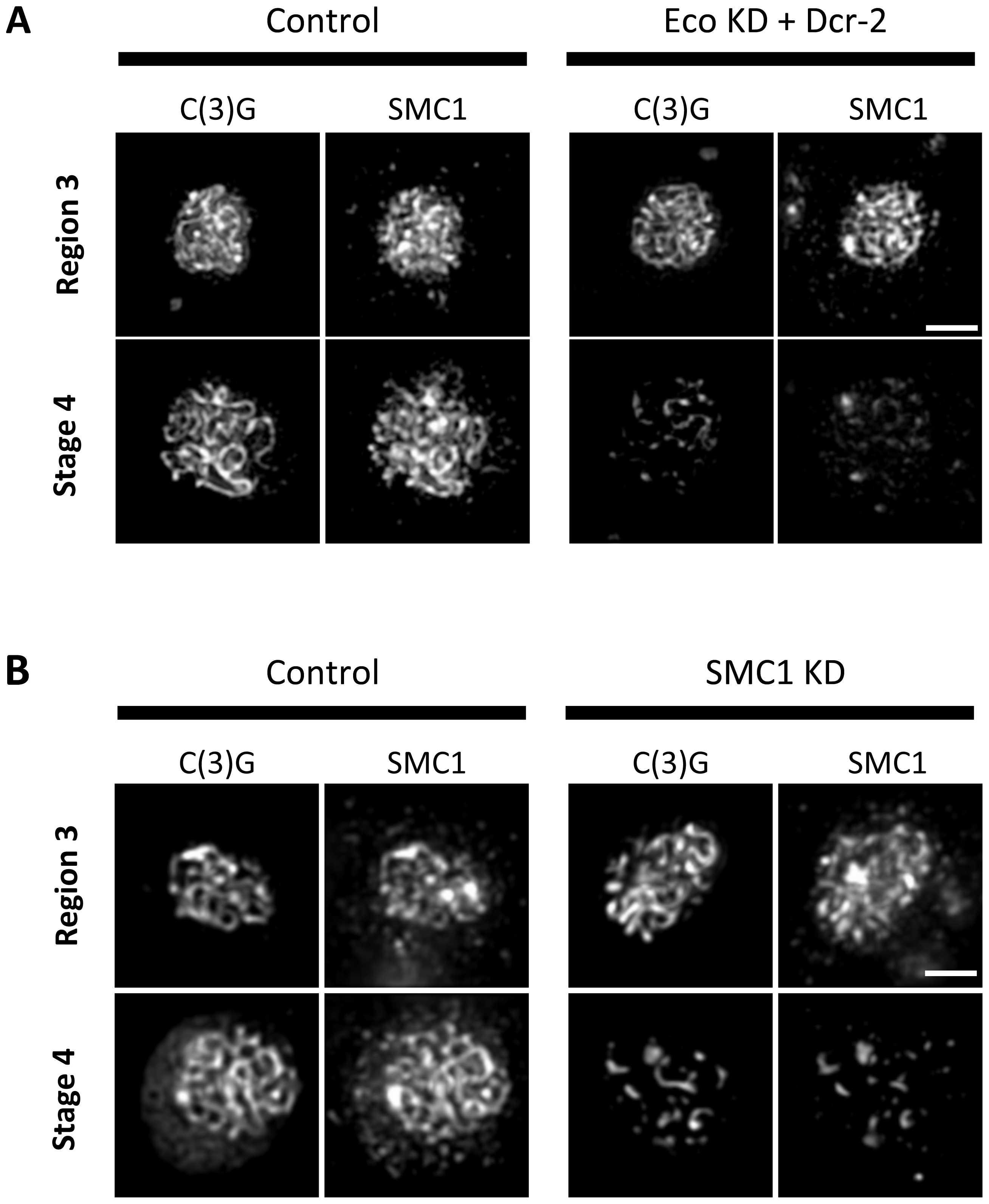 Maintenance of chromosome cores during pachytene requires Eco activity and synthesis of SMC1.