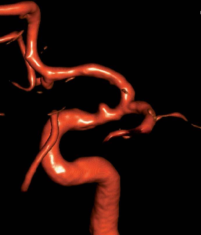 Angiografie ukazuje drobné aneuryzma na spastickém supraklinoidním segmentu ACI.