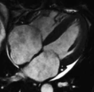 Koncentrické zesílení stěn nezvětšené levé komory, dilatace obou síní s intermitentním zesílením jejich stěn a perikardiální výpotek u volné stěny levé komory u nemocného s amyloidovou kardiomyopatií;