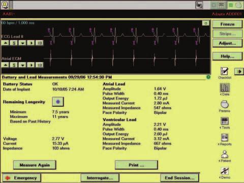 Obrazovka obsahující detailní údaje o stavu baterií a energii stimulace.