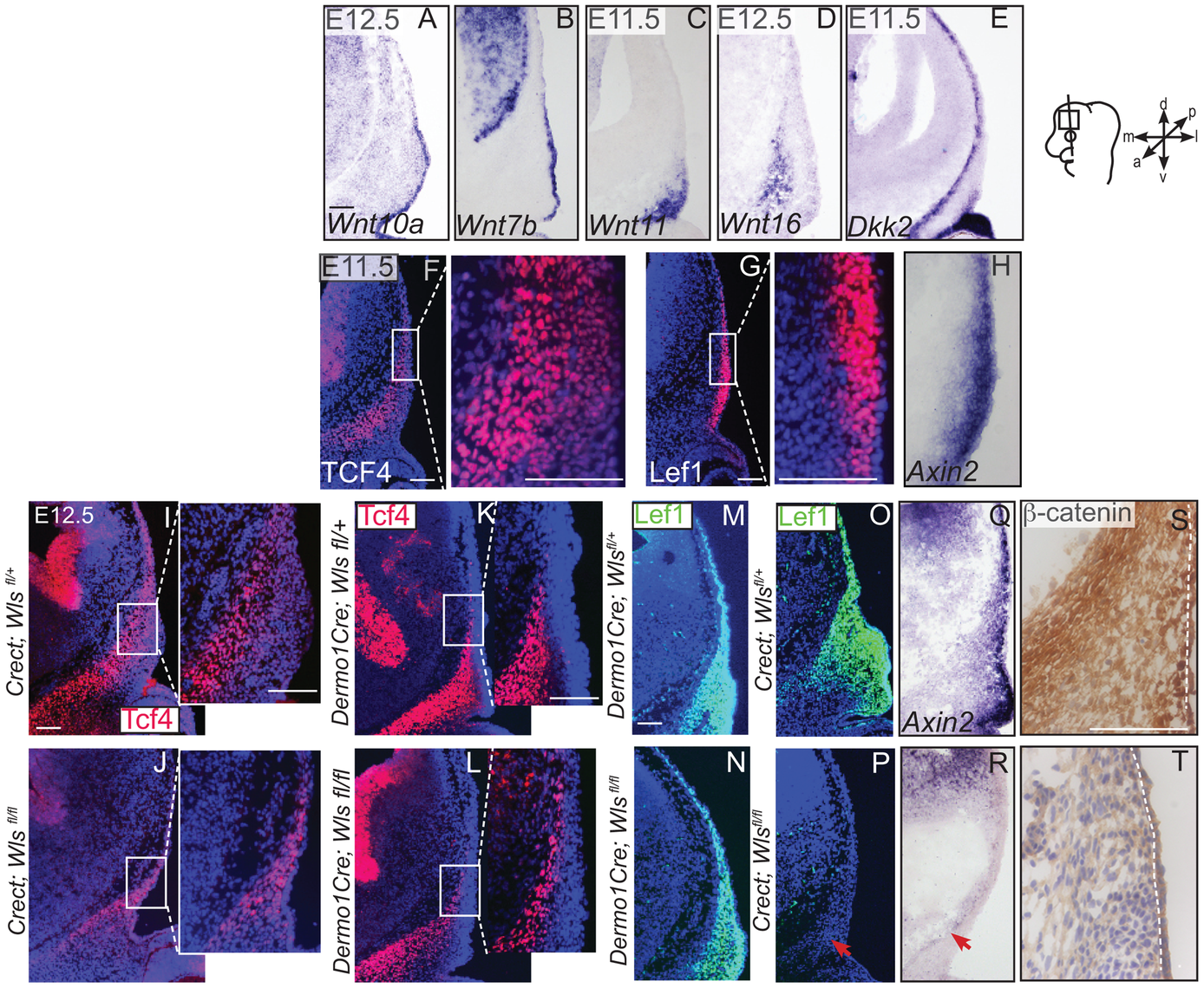 Generation of Wnt responsiveness in the cranial mesenchyme.