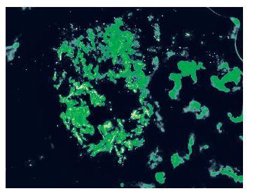 Obr. 5b Henoch-Schönleinova purpura. Granulární pozitivita IgA v mesangiu a v některých kapilárních kličkách. Imunofluorescence 200x.