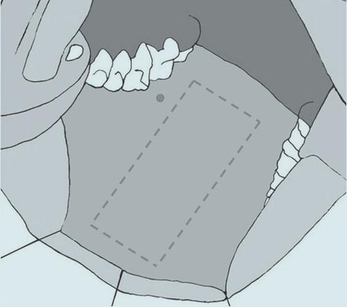 Je vyznačena délka a šířka obdélníkového štepu.