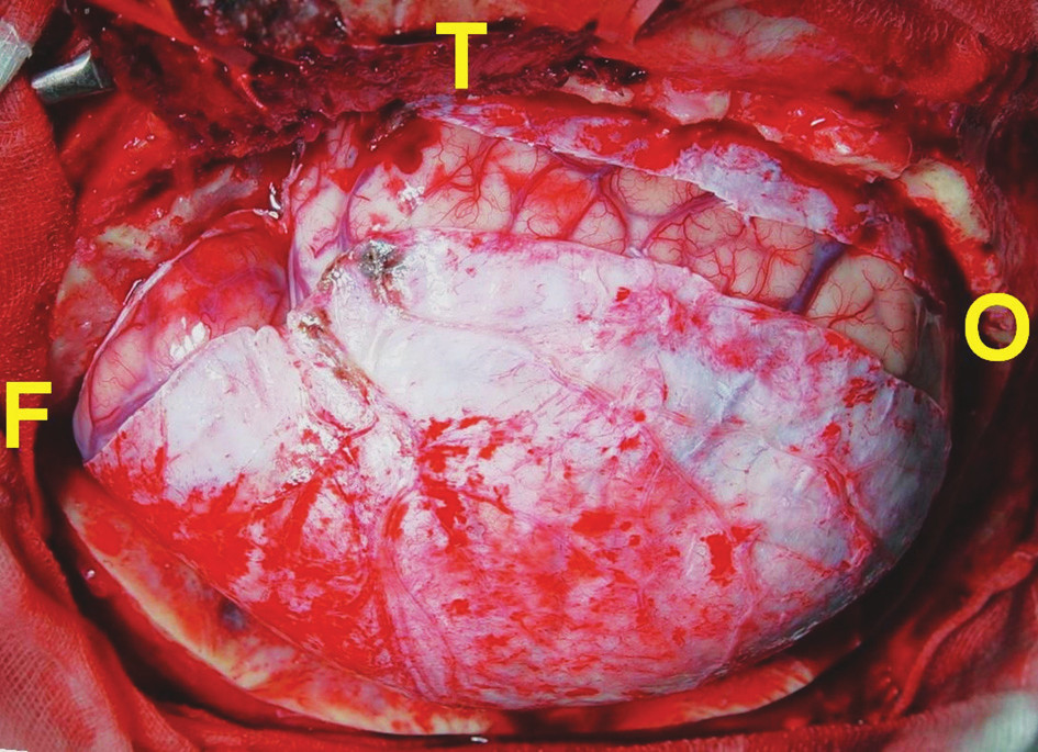 Obloukovitá incize dury konvexitou směrem k lebeční bázi vpravo. Defekt tvrdé pleny po durotomii přesahuje v temporální krajině 1 cm. F – frontálně, T – temporálně, O – okcipitálně Fig. 2. U-shaped dural incision, with a convexity towards the skull base on the right. The resulting temporal dural defect is over 1 cm. F – frontal, T – temporal, O – occipital