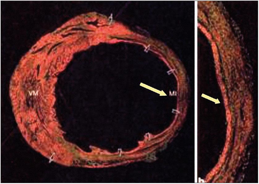 Regenerace myokardiální fibrotické jizvy u myších modelů po podání KB. Převzato z [16] se svolením D. Orlica.