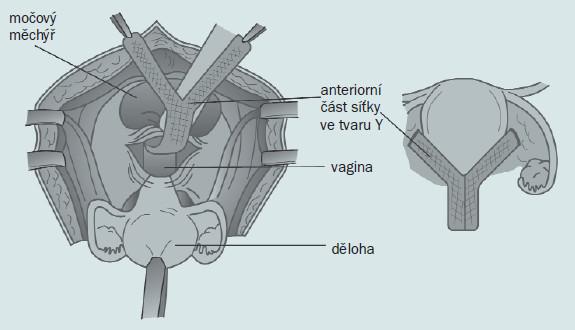 Při hysterokolposakropexi je podél anteriorní části vaginální stěny připevněna síťka ve tvaru ypsilon.