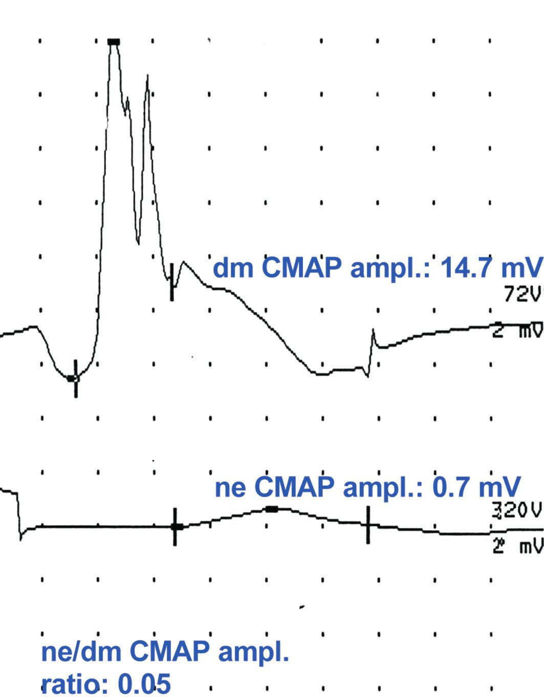 a–c. Záznam přímé svalové stimulace [73 s laskavým svolením Springer Science + Business Media]. Horní křivky představují záznam svalové odpovědi vyvolané přímou svalovou stimulací intramuskulárně jehlovou elektrodou (dmCMAP), dolní křivky představují záznam svalové odpovědi při stimulaci nervu povrchovou elektrodou (neCMAP).  Obr. 2a ukazuje normální dmCMAP, sníženou neCMAP a nízký poměr ne/dmCMAP (0,05) svědčící pro neurogenní lézi (< 0,5).