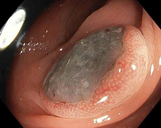 """Léze vzhledu """"volského oka"""" velikosti 30 mm v tlustém střevě, ve zvětšení Near Focus. Fig. 3. Bull's eye lesion of the colon, 30 mm in diameter, magnified with Near Focus."""