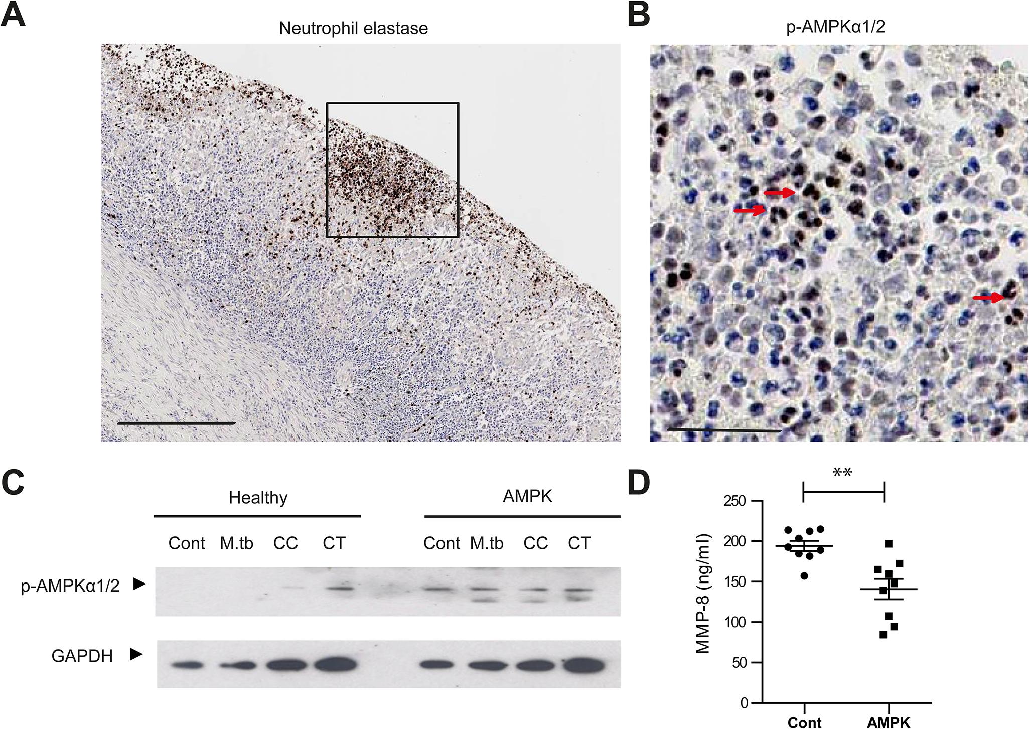 AMPK regulates neutrophil MMP-8 secretion in patients.