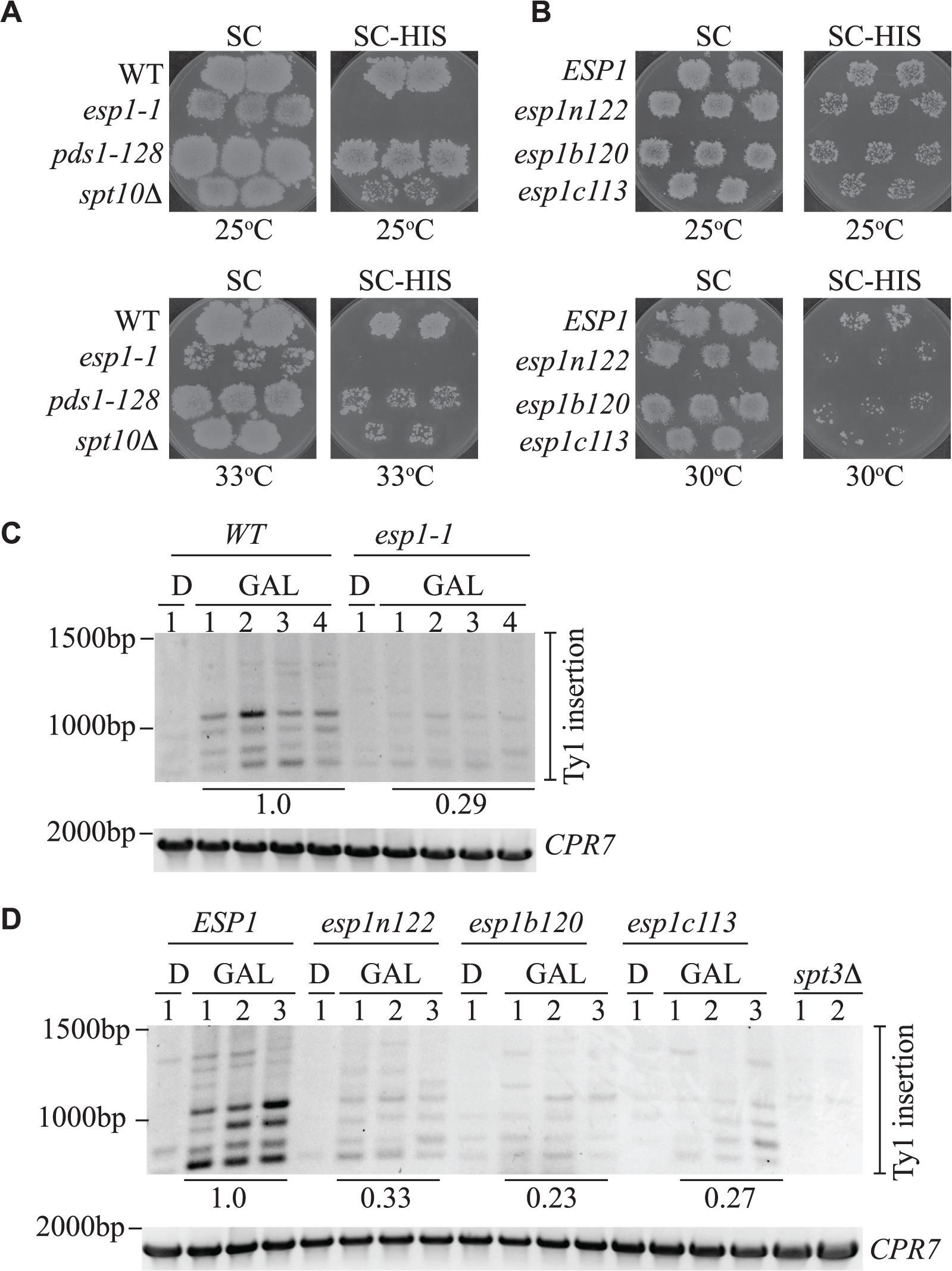 All Esp1 domains contribute to Ty1 transposition.