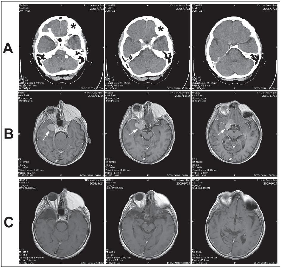 Obr. 1. Kazuistika 1. a) CT dokumentovaný stav po operaci spinocelulárního karcinomu maxilly vlevo (hvězdička). b) MR vyšetření s odstupem s nálezem meningeomu (šipka). c) Kontrolní MR vyšetření po exstirpaci meningeomu.