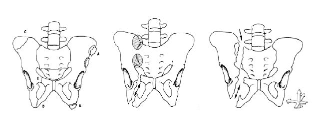 Fraktury pánve: dělení dle AO – typ A, B a C