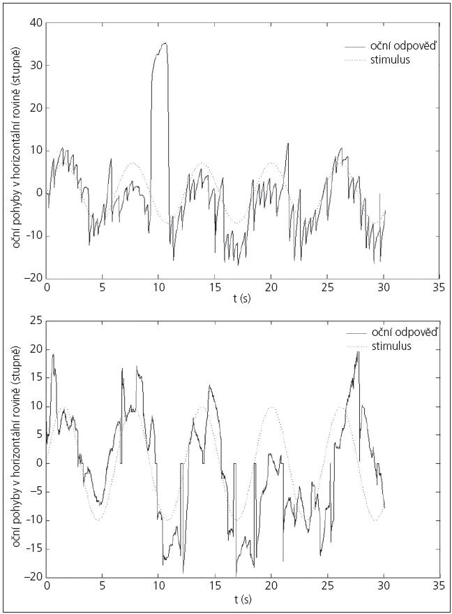 Graf 1a, b. Příklad záznamu vyhledávacích očních pohybů vyvolaných horizontálním stimulem (přerušovaná čára). Je patrný významný úbytek nystagmoidních záškubů po SDR (1b).