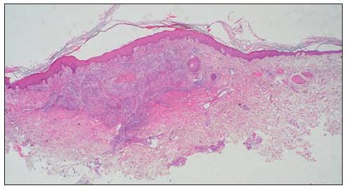 Histopatologický obraz EED (farbenie HE, zväčšenie 20x)