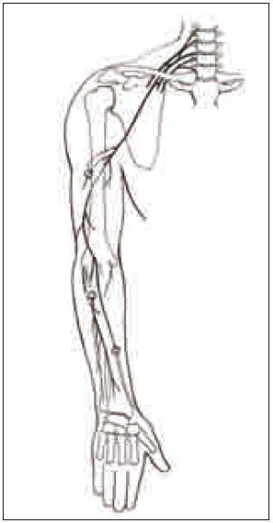 Typická místa poranění nervu: v axile, ve střední části paže, v oblasti hlavičky vřetenní kosti a v oblasti n. superficialis na distálním předloktí a zápěstí.