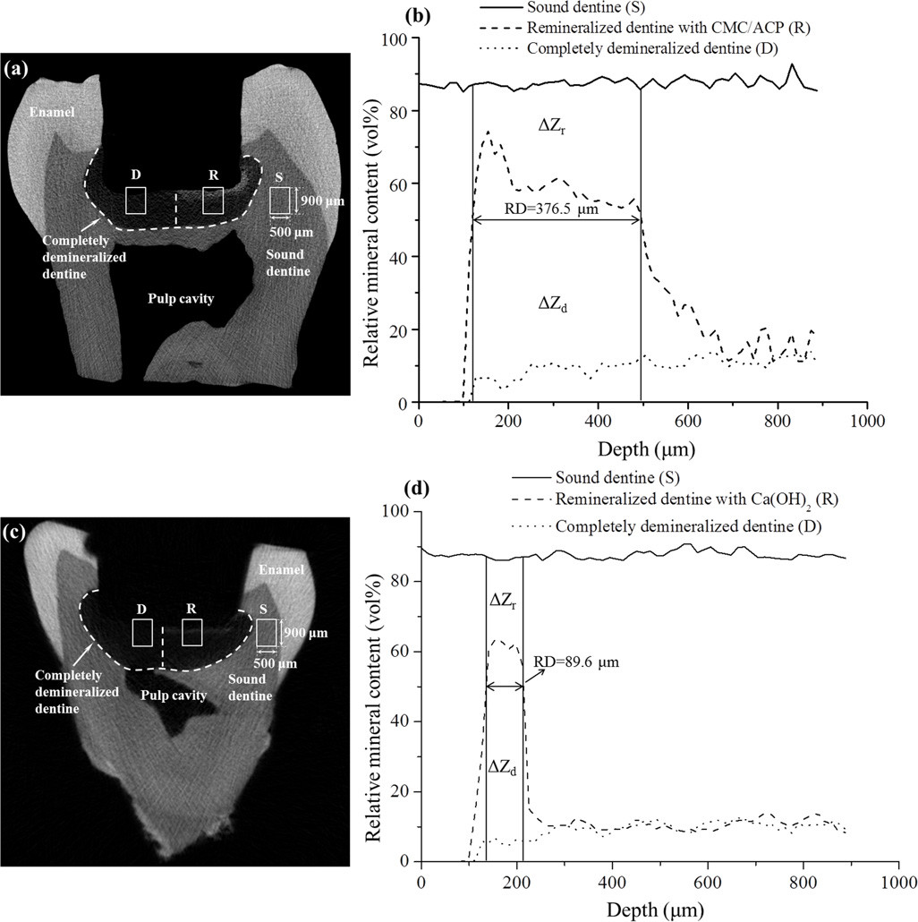 Representative Micro-CT images and mineral profiles of the samples of tooth model of deep caries. (a, b), CMC/ACP treatment group; (c, d), Ca(OH)<sub>2</sub> treatment group.