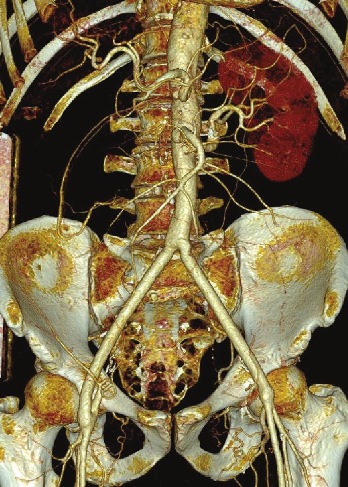 CTA kontrola po 4 letech od výkonu Fig. 17: Follow-up CTA 4 years after surgery
