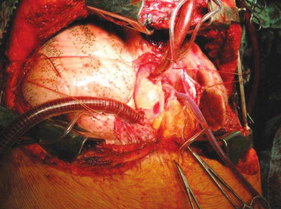 Technika transplantace plic, stav po implantací Fig. 5.Lung tansplantation technique, the condition after the procedure