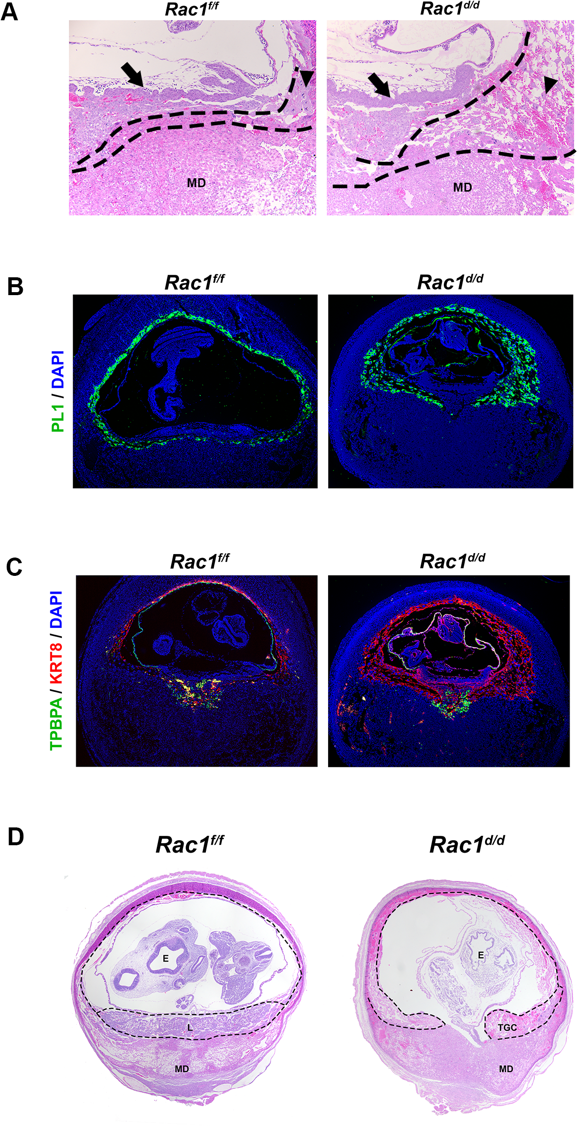 Abnormal trophoblast proliferation, differentiation and disorganized placentation in <i>Rac1</i> conditional-knockout mouse.