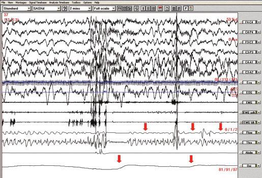 Polysomnografický záznam (2minutový úsek), pacientka č. 2. Obstrukční apnoe v NREM 2 spánku spojené s poklesy saturace hemoglobinu kyslíkem (označeno šipkami).