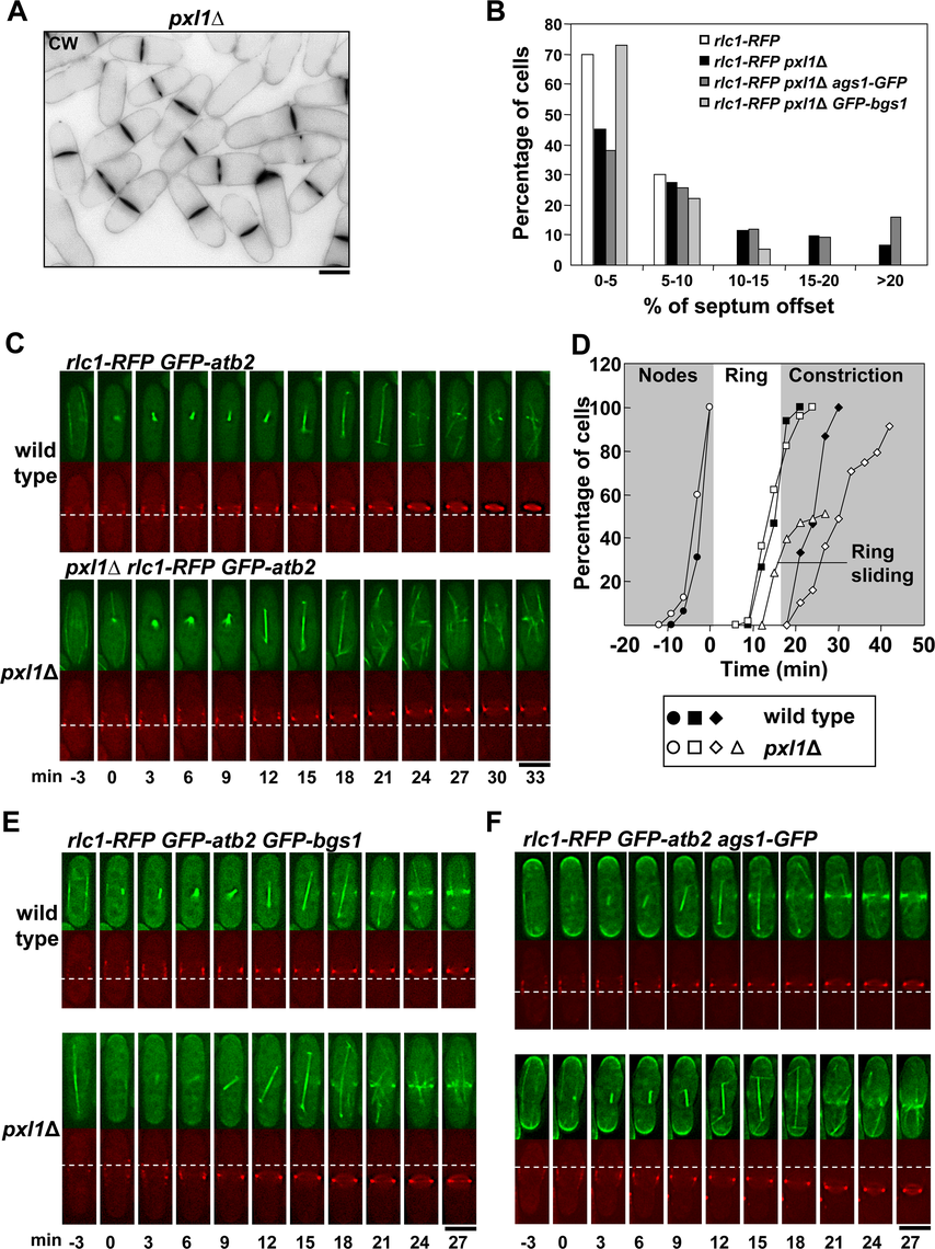 Pxl1 is required for stable CAR and septum positioning in the middle of the cell.
