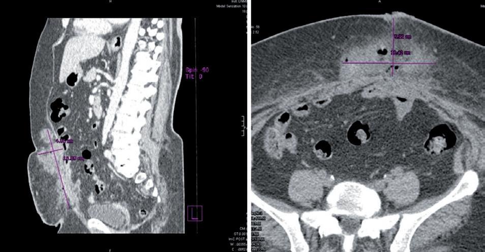 CT nález; dĺžka rany CC 16,09 cm, hĺbka rany AP 5,99 cm, šírka rany LL 10,42 cm