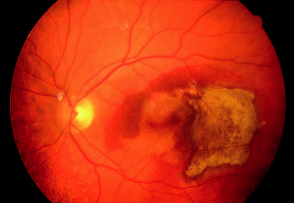 Výrazná regrese, reziduum organizované subretinální hemoragie