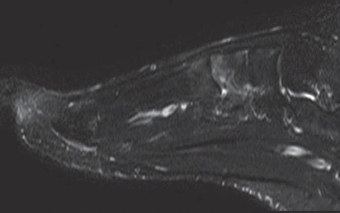 MRI nohy (červen roku 2012). Prokazatelný obraz nehomogenního edému v oblasti Lisfrankova kloubu, nejvýrazněji v os cuneiforme med. a v bázích I. a II. metatarzu (skvrnitě dekalcinovaná struktura a mnohočetná cystická projasnění v talu viditelná CT obraze, nejsou při MRI prokazatelná).
