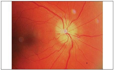 Edém papily zrakového nervu vpravo, najmä v dolnej časti, prekrývajúci oftalmoskopicky viditeľné drúzy