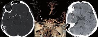 Pacientka s okluzí M1 úseku ACM vpravo. Na obr. A a B je zdrojový snímek a rekonstrukce CT angiografie. C – nativní snímek s nálezem dense artery sign v odpovídající lokalizaci.