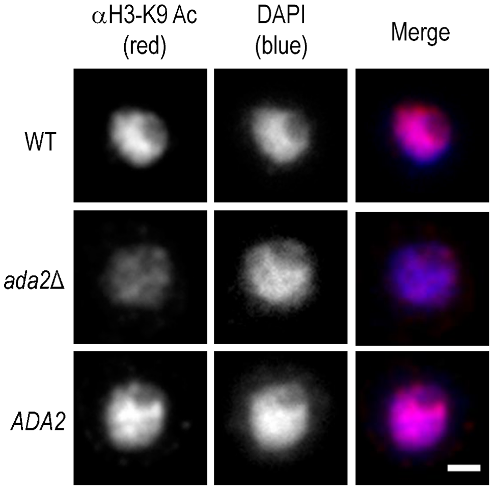Histone acetylation is markedly reduced in the absence of Ada2.