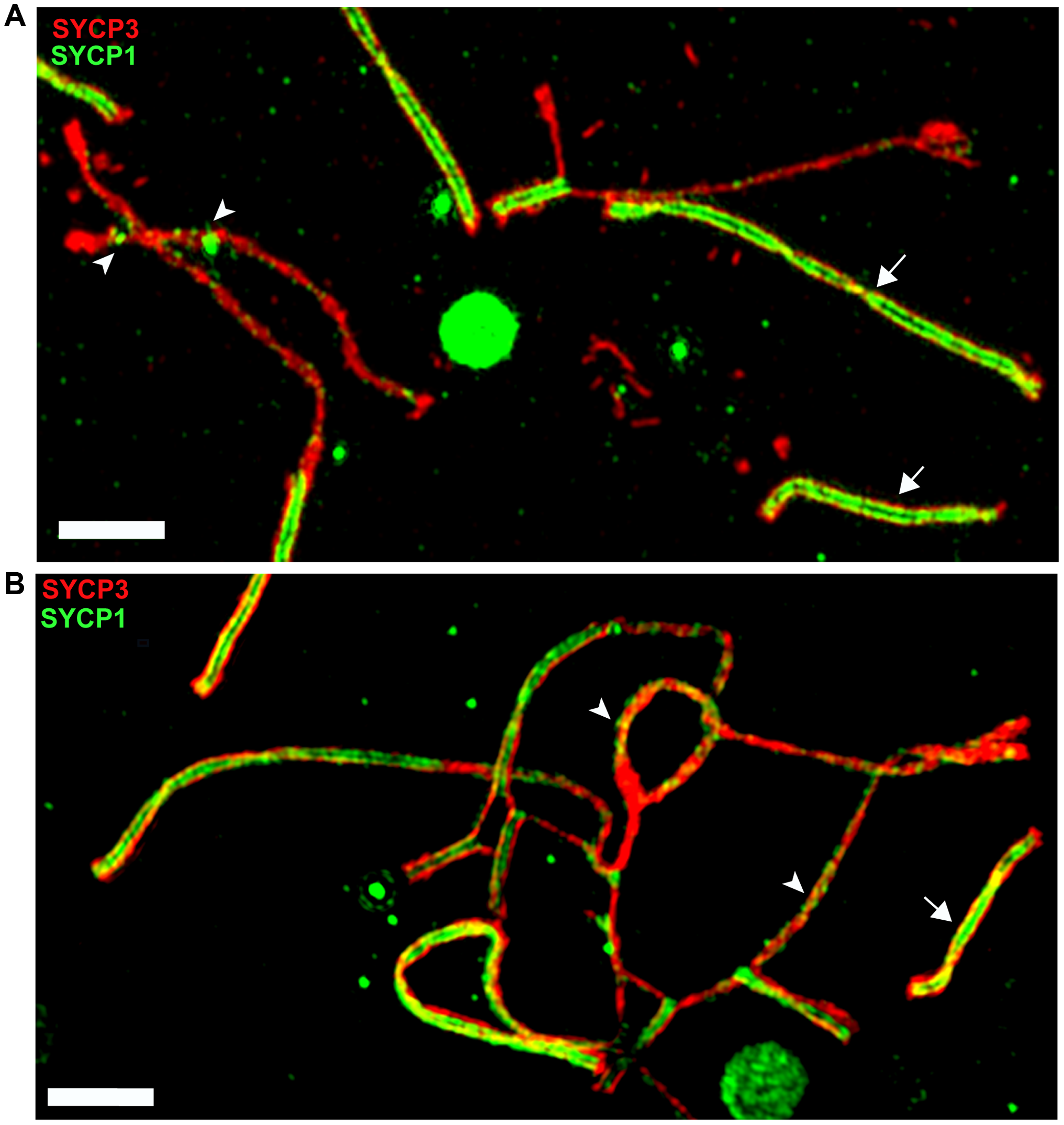 Super-resolution microscopy of synaptonemal complexes on spreads of (B6.PWD-Chr X.1s×PWD) pachytene spermatocytes.