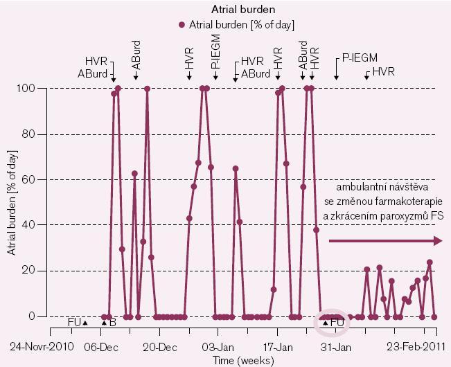 Obr. 2a. Mimořádná kontrola pacientky na základě detekovaných recidivujících paroxyzmů FS v trvání i několika dní (1 černý bod v grafu = záznam jednoho dne, zobrazen % podíl doby trvání arytmie ze dne) při stávající farmakoterapii a významná redukce délky trvání paroxyzmů (i přes jejich přetrvávající četnost) změnou medikace (již dříve zavedená antikoagulační léčba u jinak asymptomatické pacientky).