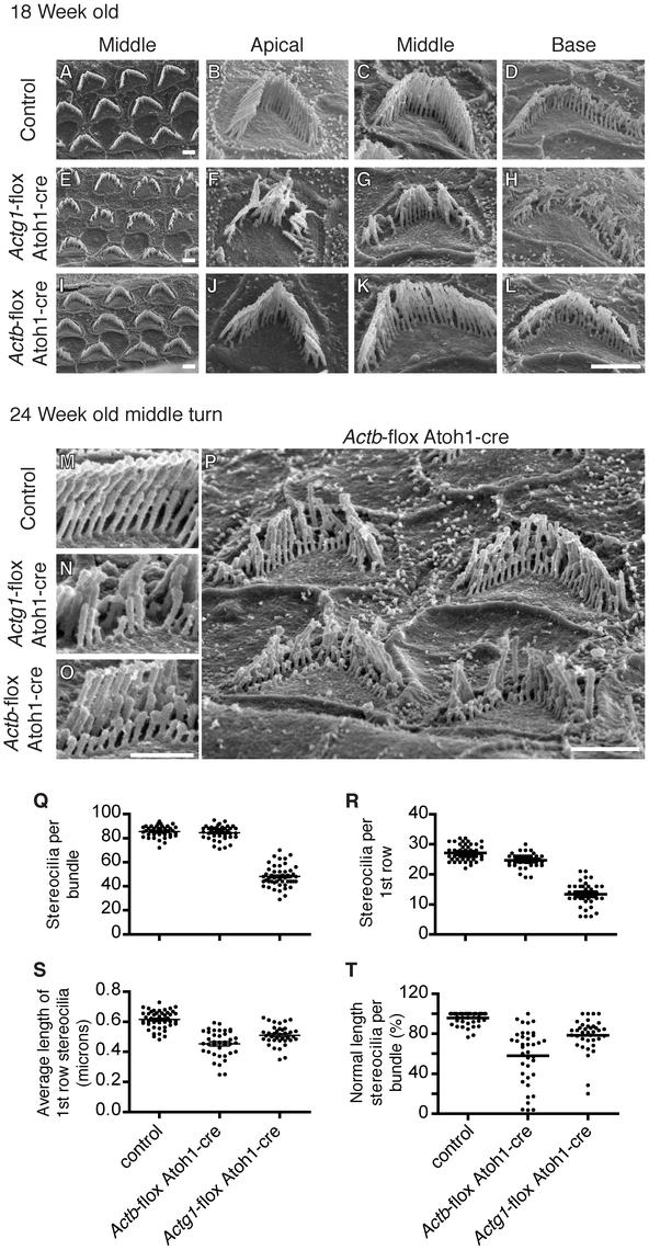 β-actin and γ-actin deficient stereocilia develop distinct pathology.