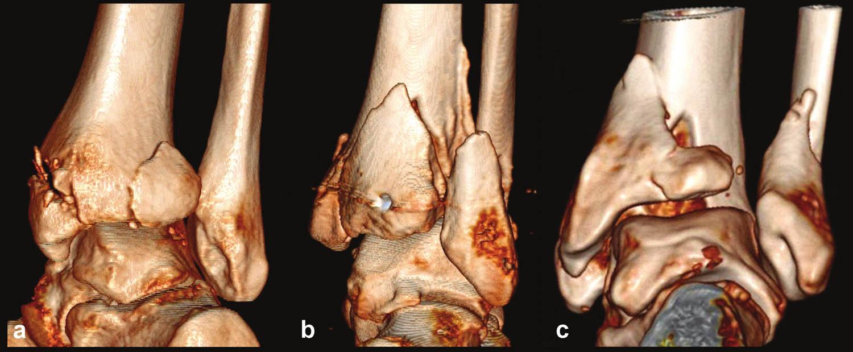 Autory navržená klasifikace zlomenin zadní hrany tibie v 3D CT rekonstrukci a – Typ 1 (posterolaterální), b – Typ 2 (posteriorní), c – Typ 3 (posteromediální)