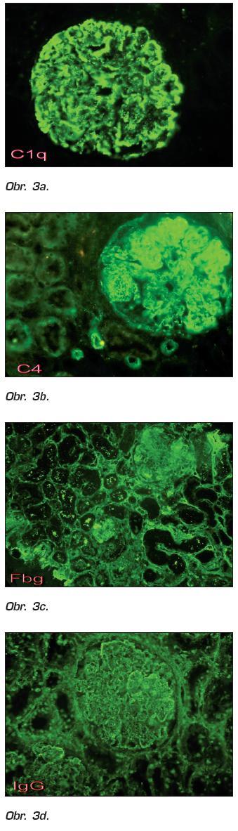 Obr. 3a, b, c, d. Biopsia obličky, imunofluorescencia. Granulárne subendotelové, intramembranózne a subepitelové depozity silnej intenzity IgG, C1q a pri C4 depozity aj v stenách ciev interstícia, zvýraznené interstícium pri fibrinogéne  (Publikované so súhlasom RNDr. P. Gomolčáka, PhD., Cytopathos, Bratislava).