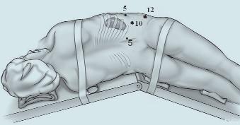 Naše rozložení portů při retroperitoneoskopické nefrektomii. Původní incizí pod 12. žebrem po vytvoření pracovního prostoru jsou naslepo za kontroly prstu zavedeny v přední axilární čáře porty 5 mm (kraniálně) a 12 mm (kaudálně, je určený pro stapler), ve skapulární čáře je zaveden port 5 mm.