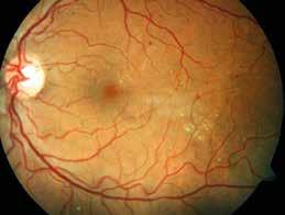 Neproliferativní forma diabetické retinopatie