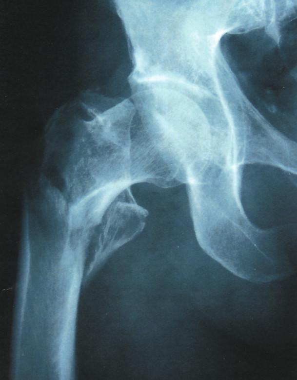 Vícefragmentová pertrochanterická zlomenina stehenní kosti; častá zlomenina u seniorů Fig. 3. Amultifragmented pertrochanteric femoral fracture; a common fracture in the elderly
