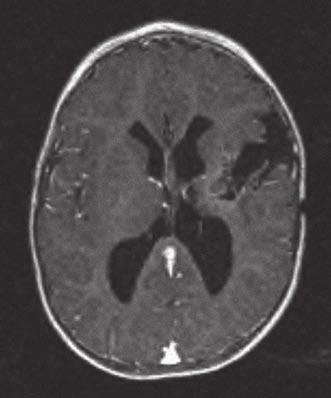 Gemistocytární astrocytom GII u ročního chlapce byl odstraněn transkortikálně přes střední temporální závit.